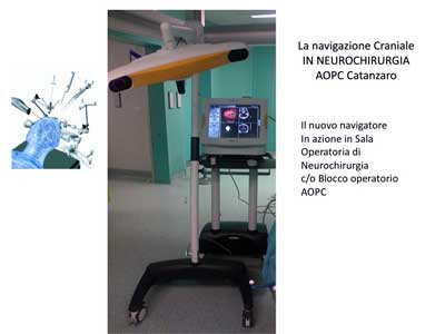 Catanzaro: nel reparto di Neurochirurgia del Pugliese - Ciaccio arriva un sofisticato apparecchio per la navigazione tridimensionale  nell'area celebrale